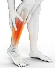 Stress Fractures V Shin Splints